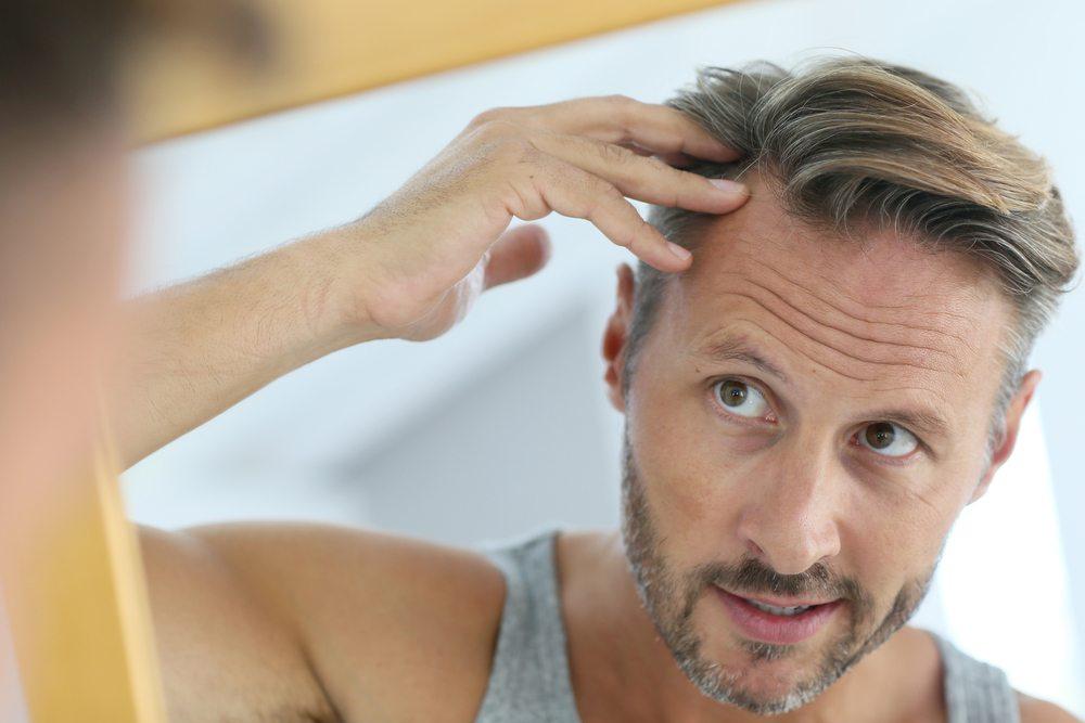 men loses hair