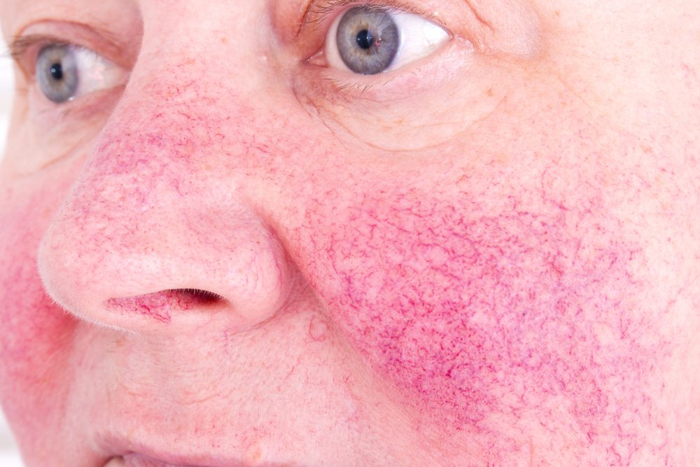 red blood vessels on face