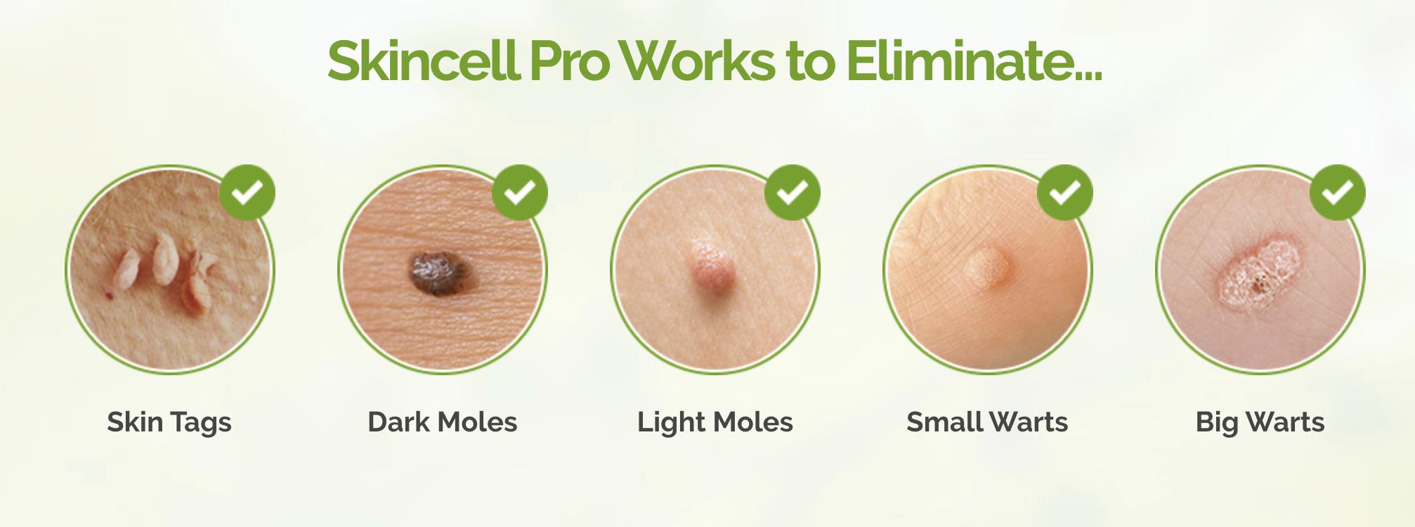 skincell remove warts » EstheticsHUB.com