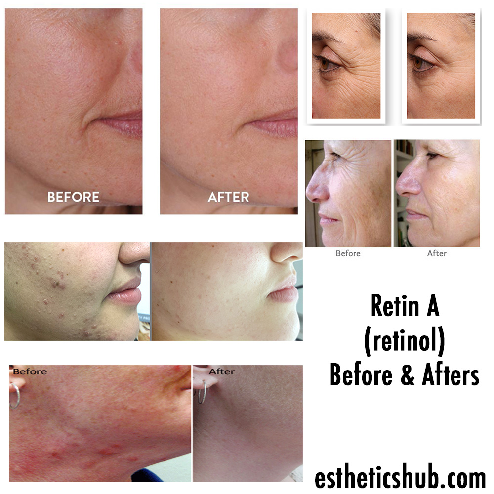 # Skin Rejuvenation Before And After Photos