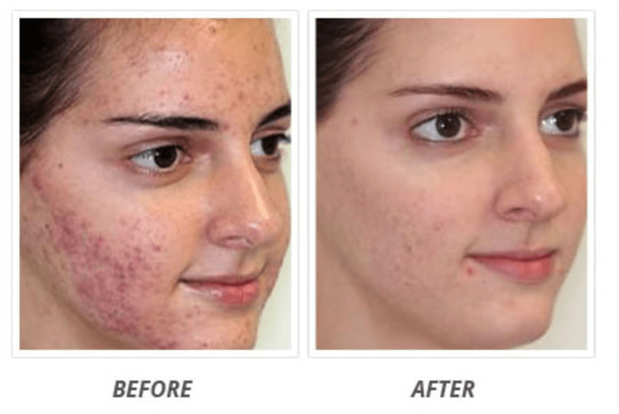 Acnezine Review Best Acne Treatment Or A Scam