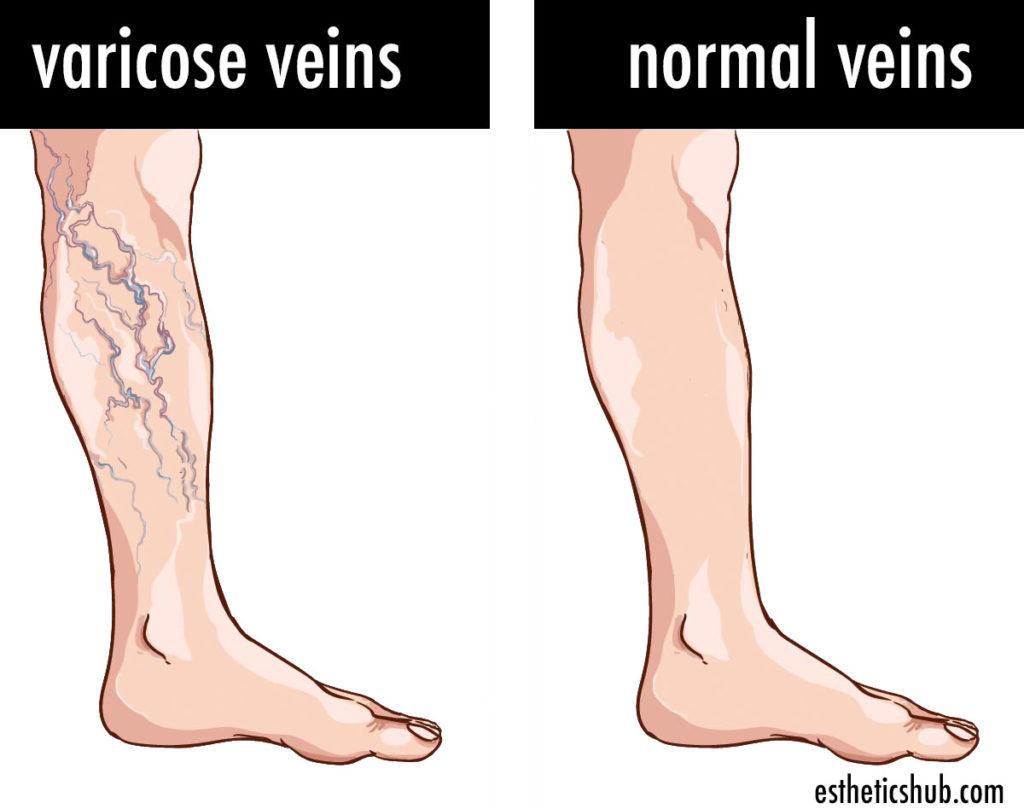 varicose veins explained