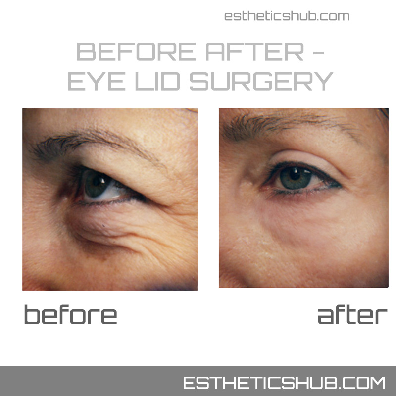 eyelid lift before after