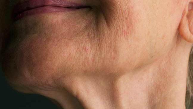 Causes of Crepey Neck